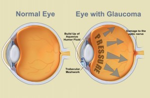 glaucoma, extreme low-carb diet