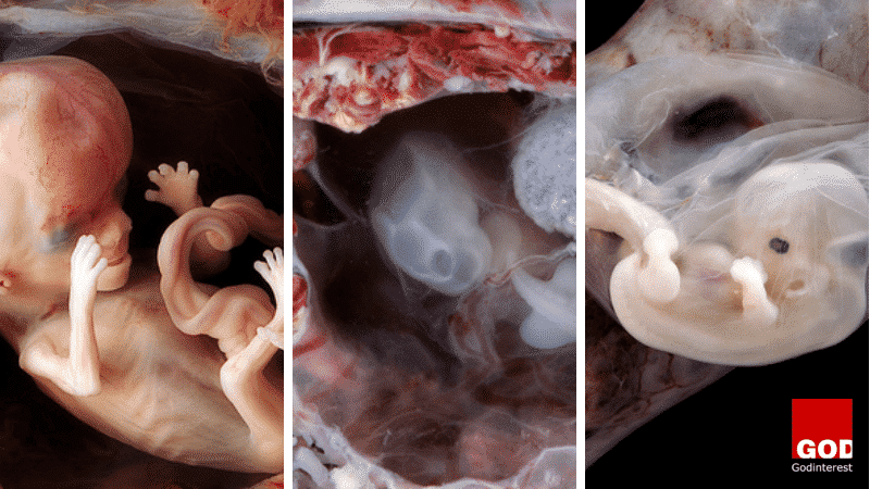 Stunning Photos of Babies in Womb Expose Pro-Abortionists lie About Human Development.