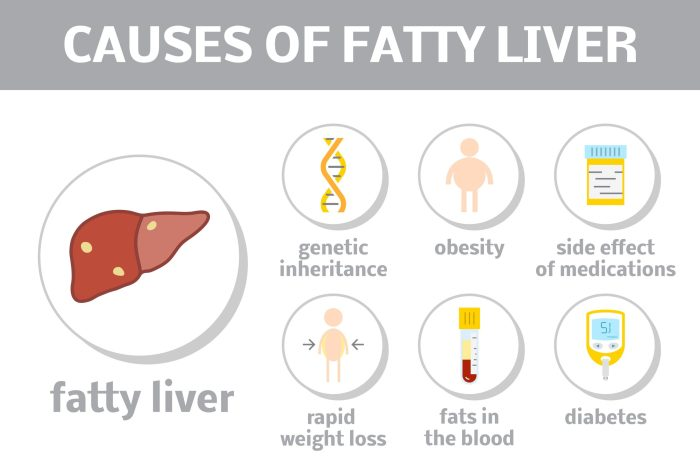 Main causes of fatty liver disesae