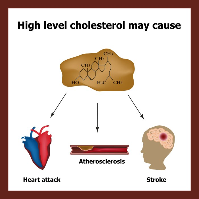 Effects of too high cholesterol level