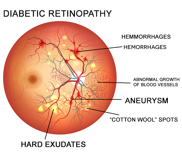 Diabetic retinopathy is a common microvascular complication in diabetes