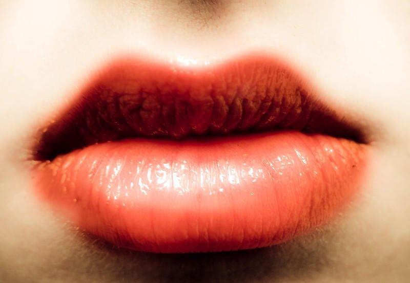 Sun Blisters On Lips