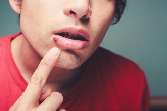Clear Bump Inside Lip