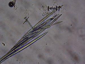 Photo of freshwater sponge (Dosilia radiospiculata) megascleres.