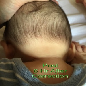 Infant-correction
