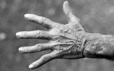 What causes arthritis? A Functional Medicine view