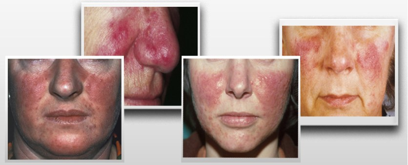 Goodbye Rosacea   75%   The Highest Converting Rosacea Offer On CB  Image of h8 8 1