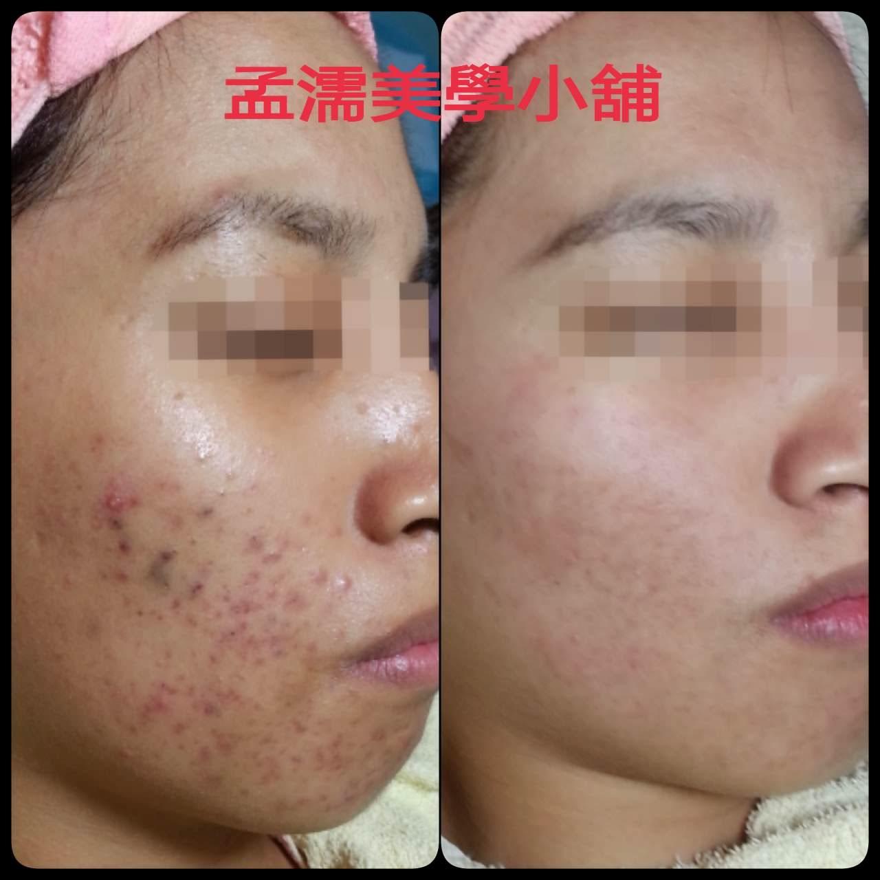 臉部青春痘(痤瘡)如何處理改善