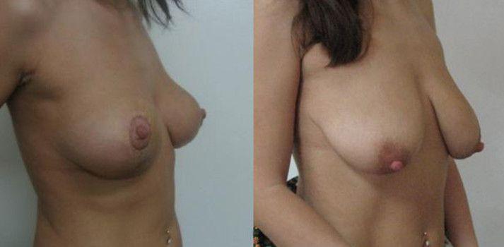 миллиметр пройденного женские груди после родов порно смотреть нудисты