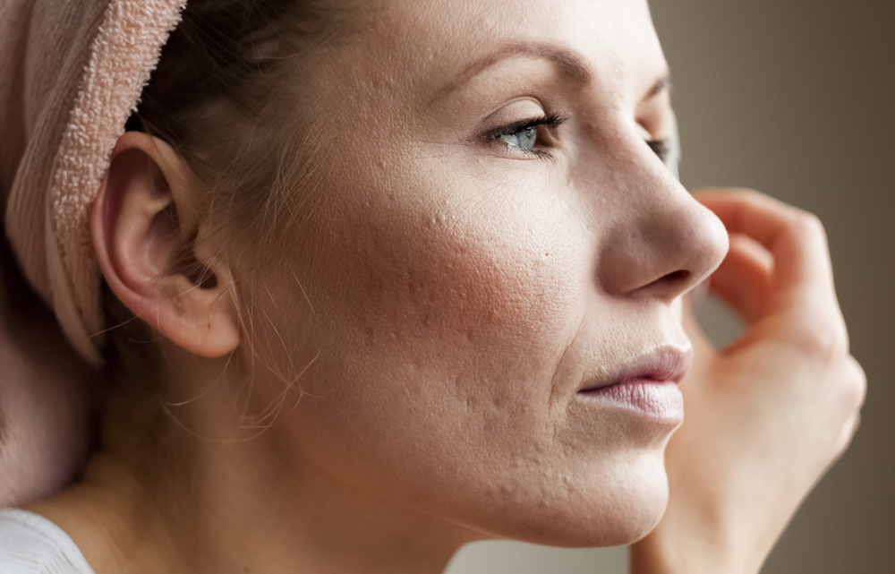 Macro shot of young woman's cheek with acne scarring