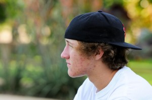 Sad teen boy outdoors with acne looking away from camera with black backwards hat and white shirt.