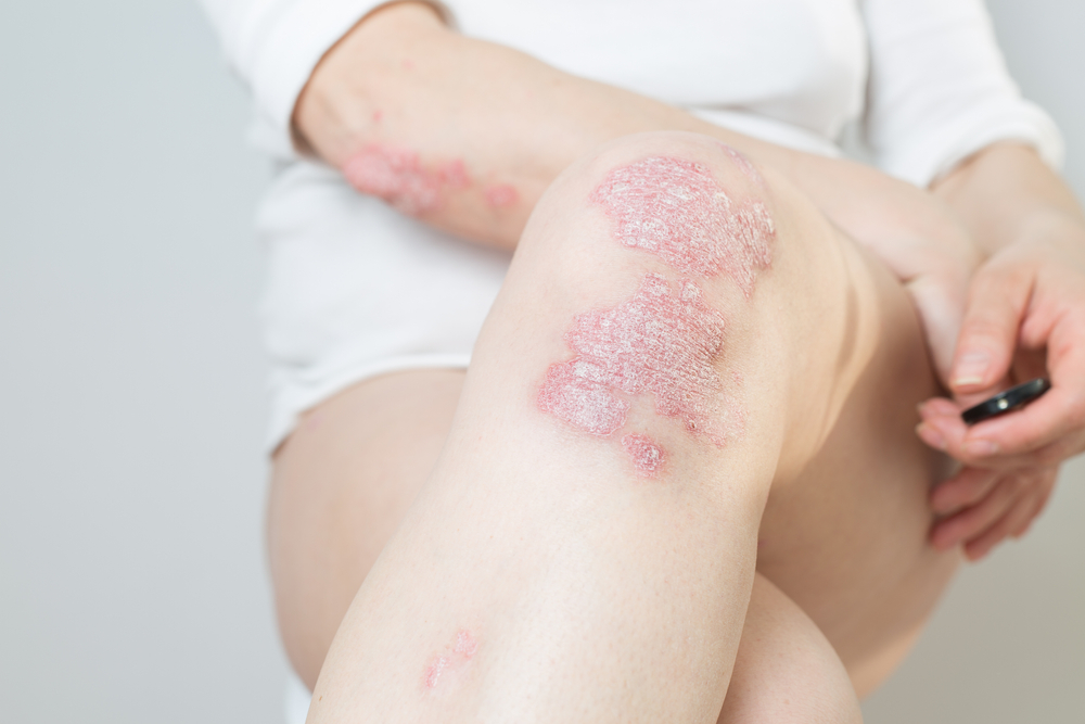 Acute psoriasis on the knee and elbow on woman