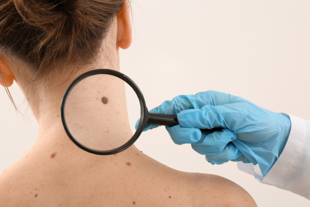 Dermatologist examining moles of patient on light background