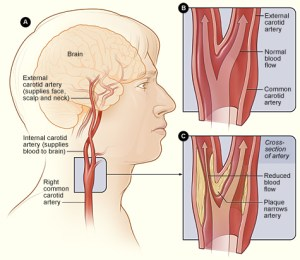 Stroke, brain, blocked artery