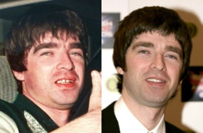 Noel Gallagher, teeth
