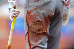The torn pants of Arizona Diamondbacks Brandon Drury as he stands on deck in the fifth inning of a baseball game against the New York Mets at Citi Field in New York, Aug. 11, 2016. (Gordon Donovan)