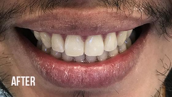 Gorgeous Smile Dental - Invisalign After 4
