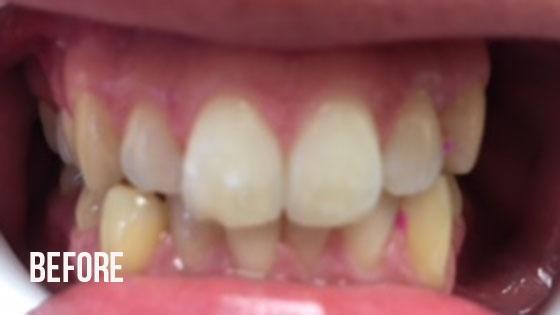 Gorgeous Smile Dental - Invisalign Before 6.1