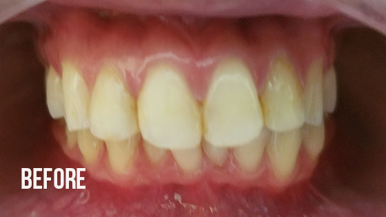 Gorgeous Smile Dental - Lumineers Before 1.1