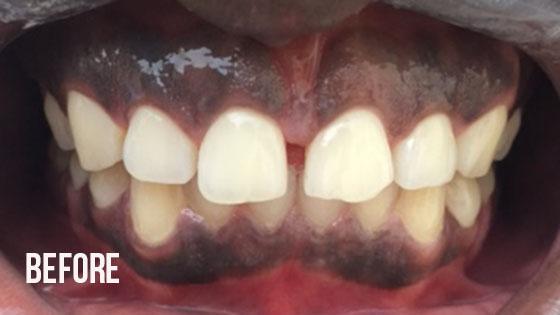 Gorgeous Smile Dental - Lumineers Before 3.1