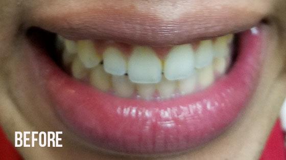 Gorgeous Smile Dental - Lumineers Before 7
