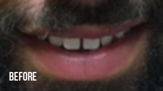 Gorgeous Smile Dental - Lumineers Before 8