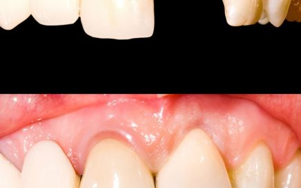 Dental Crowns in California