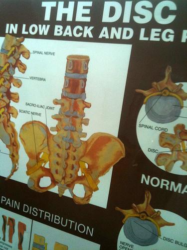 Dietary Therapy for Ankylosing Spondylitis