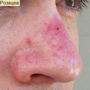 От чего появляется красное пятно на переносице. Красное пятно на носу: причины, лечение, профилактика