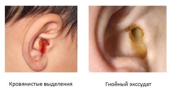У ребенка бежит из уха