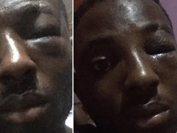 Girlfriend Organizes Area Boys To Beat Boyfriend For Slapping Her