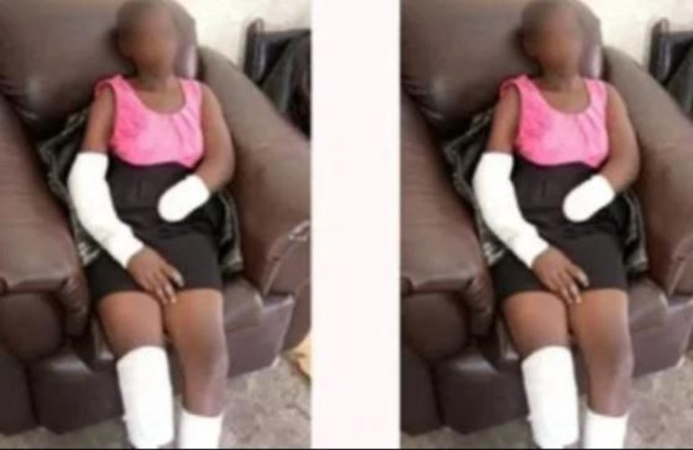 Boyfriend chops off 16-year-old girlfriend's hand for rejecting marriage proposal