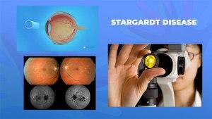 Ги запознаваме ретките болести: Старгардова болест