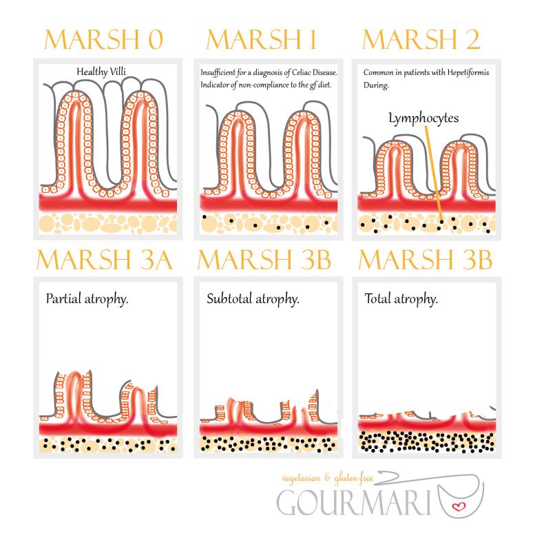 marsh-classifications-gourmari_web