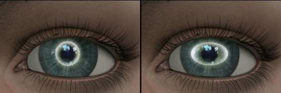 astigmat nedir
