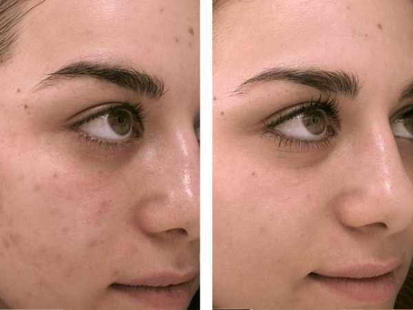 Уз чистка лица фото – фото до и после, преимущества и ...