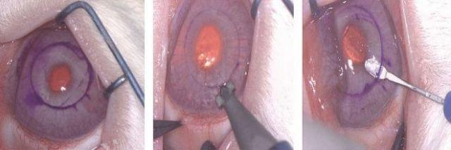 Cirugía microscópica en una de las córneas de un conejo. Se realiza una incisión con un bisturí especial y se crea un 'pocket' en la zona media del estroma corneal, donde se colocan los nanotubos de carbono.