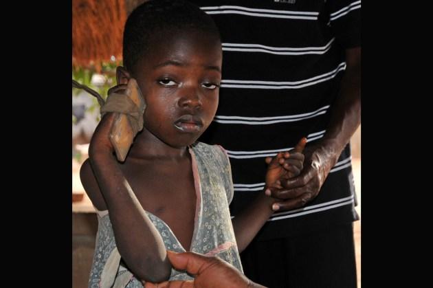 Enfant handicapée près de Lomé F13_3051