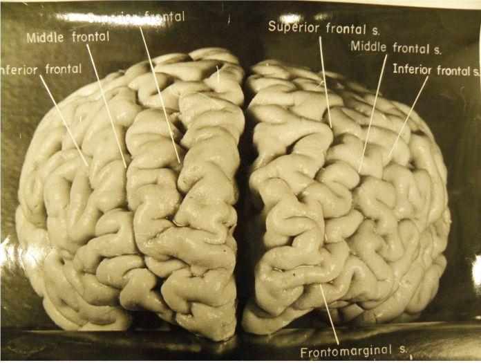 cerebro de Albert Einstein - La insólita historia del robo del cerebro de Albert Einstein