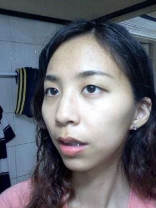 2011년 7월 10일 수술후 2개월 (11)