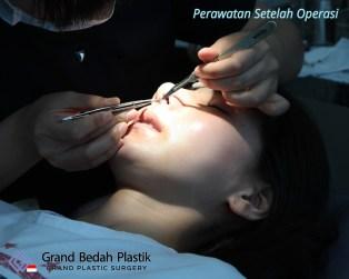 인도네시아_강유리_수술후치료1