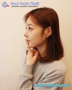 인도네시아_김유리_1개월 경과 (3)