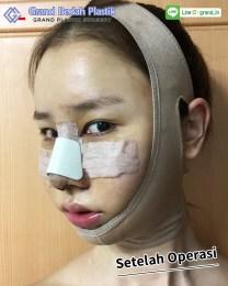 인도네시아_이진아_수술후
