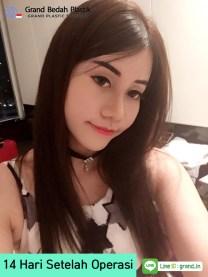 18,인도네시아_아이린_수술후 14일