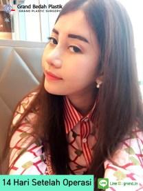 19,인도네시아_아이린_수술후 14일