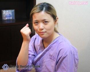 3.인도네시아-박선아-수술당일