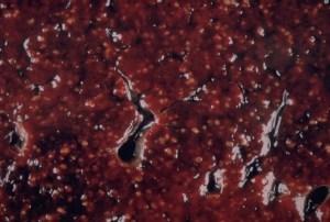 Miliary tuberculosis: pathology   Radiology Case