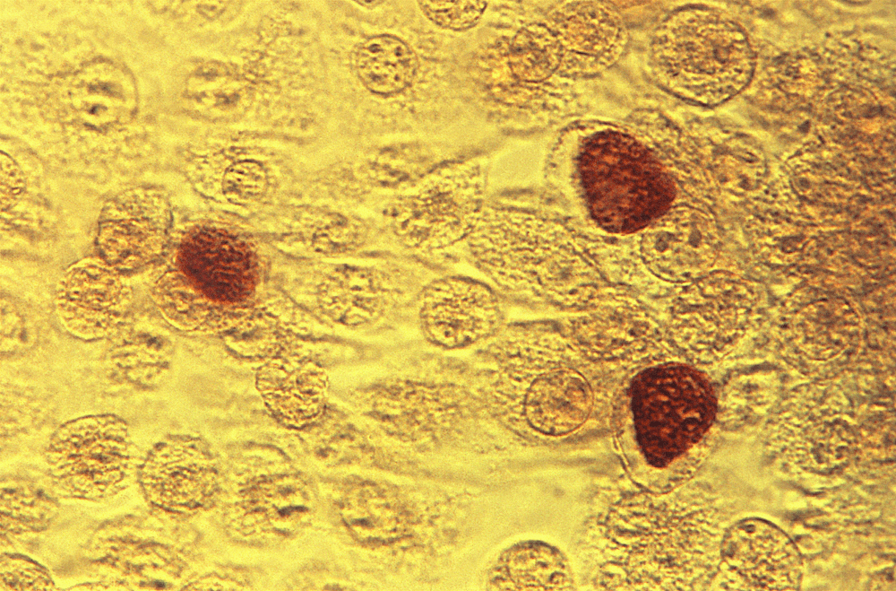 What Have We Won?—Number One For Chlamydia
