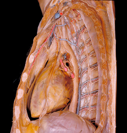 Chest dissection