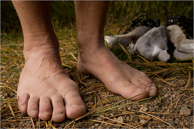 Permanently removed toe nails, Matthew Staver for NYT